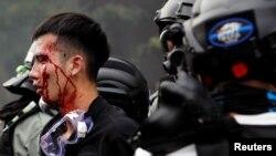 Nën arrest një student që u përpoq të çante kordonin policor