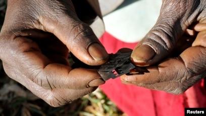 Female circumcision live surgery