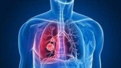 Nghẹt phổi mãn