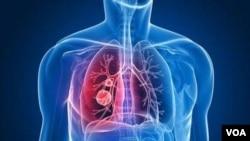 Un cancer du poumon (VOA)
