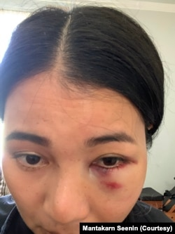Mantakarn Seenin, A Thai woman shows her wounds on her face caused by brutally attacked while riding the BART train in San Francisco, CA.