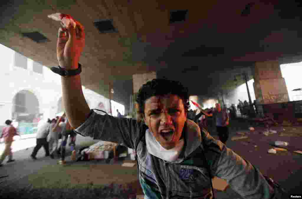A member of the Muslim Brotherhood and supporter of ousted Egyptian President Mohamed Morsi shouts slogans after he is injured in front Azbkya police station during clashes at Ramses Square, Cairo, August 16, 2013.