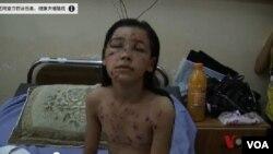 加沙醫院的這個女孩被以色列炮彈的彈片擊中。