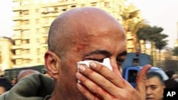 AP photographer Nasser Gamil Nasser after being beaten by a policeman and injured while shooting protests in Cairo, January 25, 2011