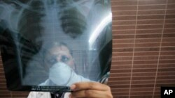FILE - A physician examines an X-ray picture of a tuberculosis patient.