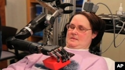 Mind-Controlled Artificial Hand