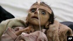 شدید غذائی قلت کا شکار ایک یمنی بچہ فیصل، ایسے بچوں کی تعداد لاکھوں میں ہے۔