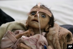 FILE - In this March 22, 2016 photo, infant Udai Faisal, who is suffering from acute malnutrition, is hospitalized at Al-Sabeen Hospital in Sanaa, Yemen.