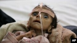 Infant Udai Faisal, who died from acute malnutrition on March 24, is one of thousands of Yemeni children who are suffering from hunger as one of the most horrific consequence of the Yemeni conflict and the naval blockade and airstrikes by the Saudi-led co