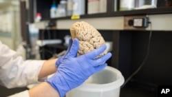 Seorang ilmuwan memegang otak manusia di sebuah laboratorium di Northwestern University, Chicago. (Foto: Dok)