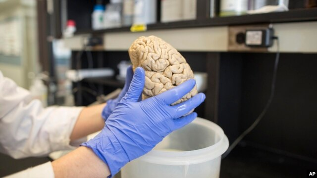 A researcher holds a human brain in a laboratory (File photo).