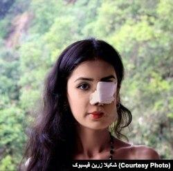 Perempuan Afghanistan korban kekerasan dalam rumah tangga, kini tinggal di Kanada. (Foto: Courtesy)