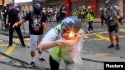 在香港抗議活動中被燃燒裝置擊中受傷的香港記者(2019年10月6日)
