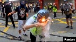 在香港抗议活动中被燃烧装置击中受伤的香港记者(2019年10月6日)