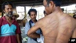 印尼青年展示他被殴打出来的伤痕