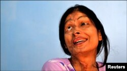 Women and girls are the most likely victims of acid attacks.