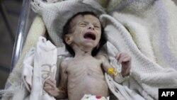 Neuhranjena beba u bolnici u istočnoj Guti, predgrađu Damaska