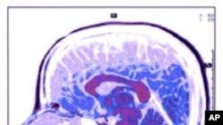 ผลการทดลองชิ้นใหม่ ให้ความหวังเรื่องการสื่อสารกับผู้ป่วยที่สมองไม่ทำงาน