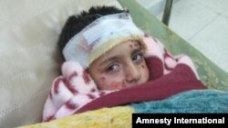 Đứa trẻ bị thương trong vụ đánh bom chùm tại Aleppo, Syria, đang được điều trị tại 1 bệnh viện dã chiến, 1/3/2013