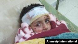 Seorang anak dirawat di rumah sakit karena terluka akibat serangan bom rumpun di Suriah (1/3).