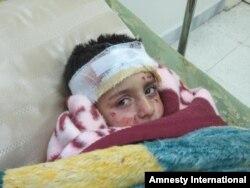 Trẻ em Syria bị thương vì bom chùm tại Aleppo (Ảnh tư liệu năm 2013)