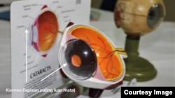 Penampang organ mata yang digunakan petugas menunjukkan bagian kornea. Kornea adalah lapisan terluar organ mata dan proses donor mata tidak akan mengubah penampilan pemberi donor. (Courtesy: Bank Mata Indonesia/doktersehat.com)