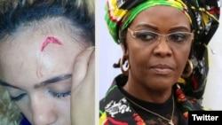 Grace Mugabe à direita e a sua alegada vítima mostrando um dos ferimentos que sofreu.