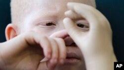 Moçambique preocupado com o rapto de albinos