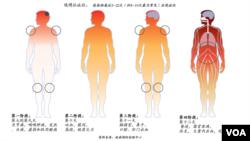 伊波拉症狀
