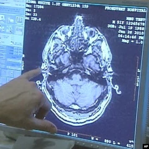 a study in traumatic brain injury Read about a study reporting that people who experience a moderate to severe traumatic brain injury are at greater risk of developing dementia, but not als.