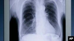 El estudio puede ayudar a entender cómo evoluciona el cáncer de pulmón.
