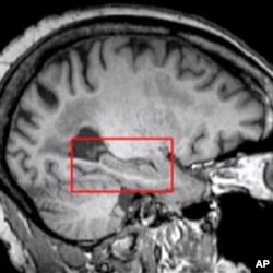 Silent Strokes Tied to Memory Loss Among Older Adults