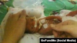 والدین جیدن او را «نوزاد معجزه آسا» نامیده اند.