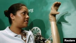 FILE - Claudia Mitchell, the first woman to receive a bionic arm, makes a shadow puppet with her new thought-controlled prosthetic hand at a news conference in Washington Sept. 14, 2006.