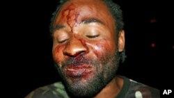 Mário Domingos, organizador de uma manifestação em Luanda em Março de 2012 agredido por desconhecidos, alegadamente dos serviços de segurança