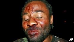 Mário Domingos, organizador de uma a manifestação de 10 de Março contra Suzana Inglês, após ter sido agredido por desconhecidos em Luanda