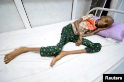 Saida Ahmad Baghili, 18, lies on a bed at the al-Thawra hospital where she receives treatment for severe malnutrition in the Red Sea port city of Hodeidah, Yemen, Oct. 24, 2016.