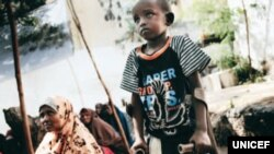 Somali child who lost a leg to a bomb explosion
