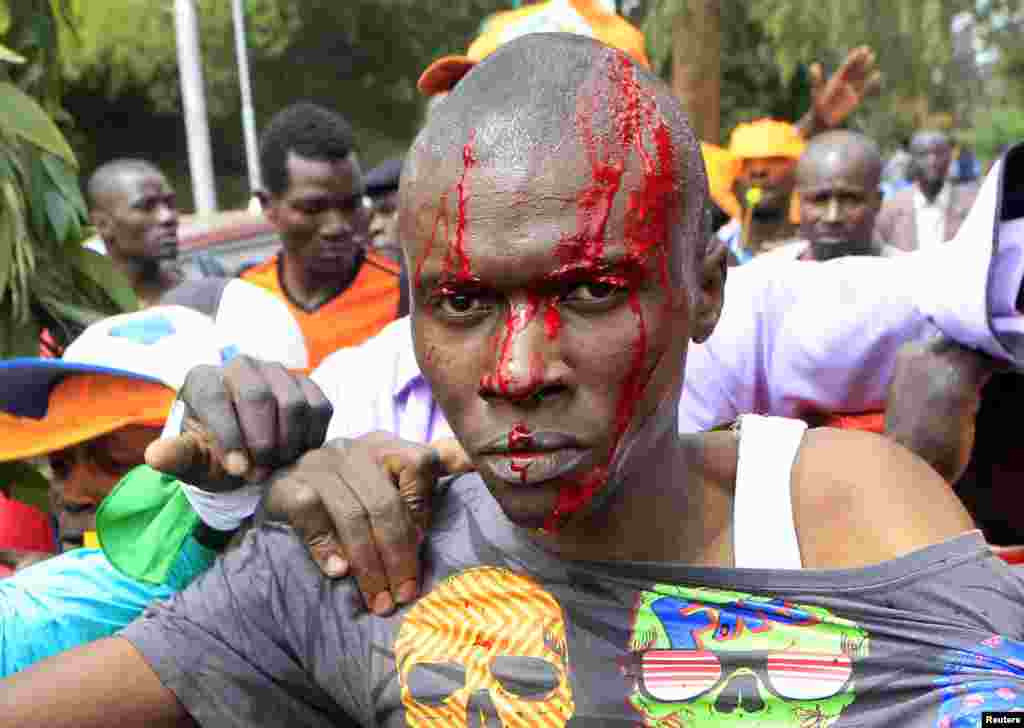 """A supporter of Kenya's opposition Coalition for Reforms and Democracy bleeds from a head injury while engaging with riot police before the """"Saba Saba Day"""" rally at the Uhuru park grounds in Nairobi, July 7, 2014."""