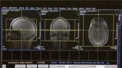 New Alzheimer's Research Raise Hope for Treatment, Cure