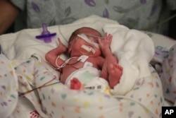 "FILE - Hospital staff prepare ""preemie"" twin Olivia Niedermeyer to undergo an eye exam at Advocate Children's Hospital in Chicago, March 15, 2016."