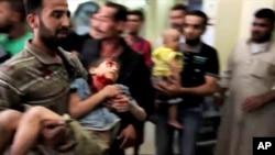 지난 3일 시리아 알레포에서 정부군의 공격으로 부상한 어린이.