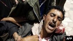 Поранений антиурядовий демонстрант в Сані