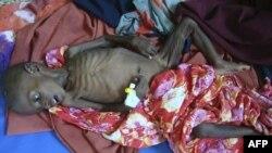 Trẻ em ở Nam Somalia bị suy dinh dưỡng được đưa đến bệnh viện để chữa trị