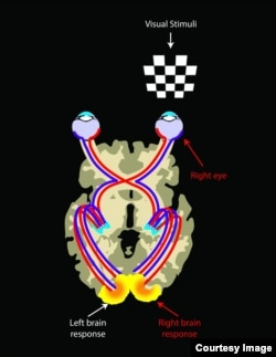 Stimulating the left or right eye in normal sighted individuals results in a symmetrical brain response shown as yellow areas in the visual cortex located in the back of the brain. This is because each eye is connected to both sides of the brain roughly equally and the connectivity of the visual pathways is alike. (Credit: Illustrated by Elena Nikonova)