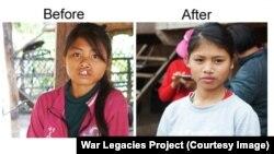 ເດັກຍິງທີ່ເກີດມາປາກແຫວ່ງຢູ່ໃນເຂດທີ່ຖືກສານສີສົ້ມພົ່ນໃສ່ ໄດ້ຮັບການປິ່ນປົວໂດຍໄດ້ຮັບການຊ່ວຍເຫລືອຂອງໂຄງການສິ່ງຕົກຄ້າງຈາກສົງຄາມ ຫລື War Legacies Project