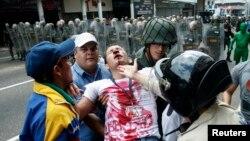 Xalq etirazlarını söndürmək üçün Nikolas Maduro hökuməti polis zorakılıqlarına arxalanır.
