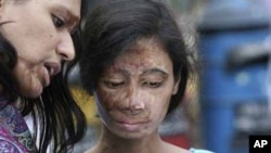 Woman whose husband threw acid in her face. [AP]