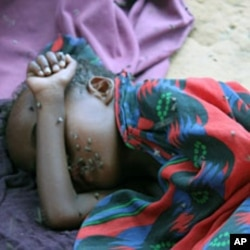 A very sick child lies covered with flies at a Mogadishu IDP camp