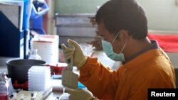 A staff member works on a blood sample of a chicken at the Veterinary Research Bureau.